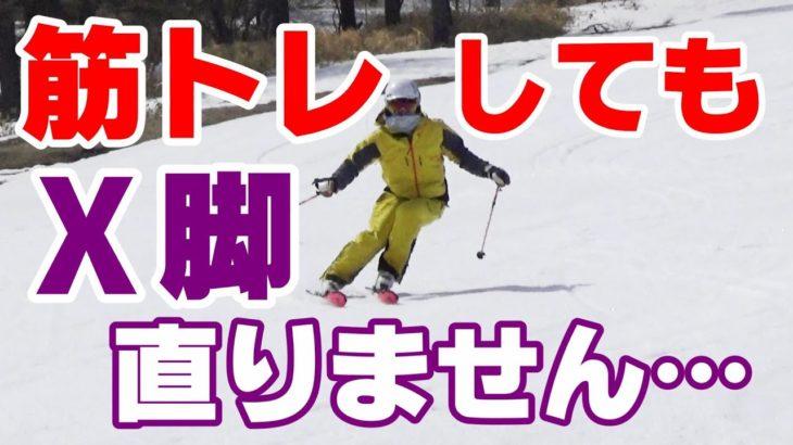 筋トレをしてもスキーのX脚シルエットが直らない!?